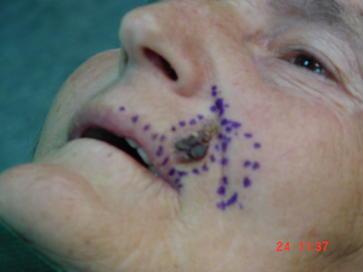 Bcc upper lip-Rotation flap